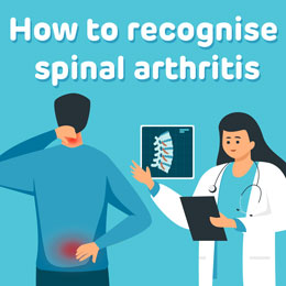 8-signs-spinal-arthritis-tn