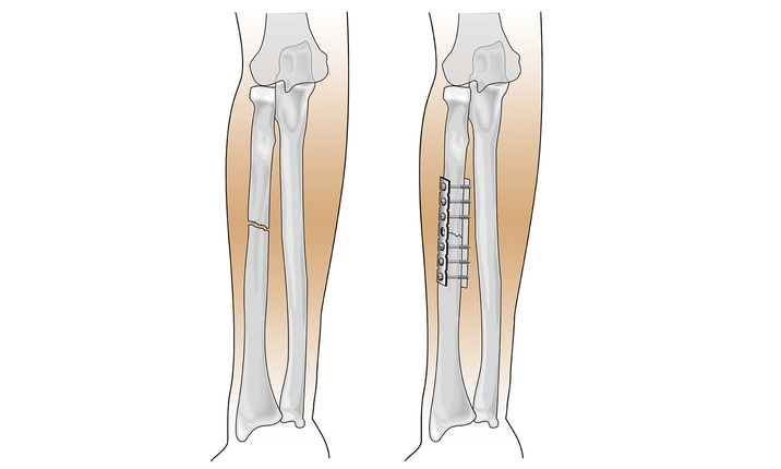 Adult fracture treatment