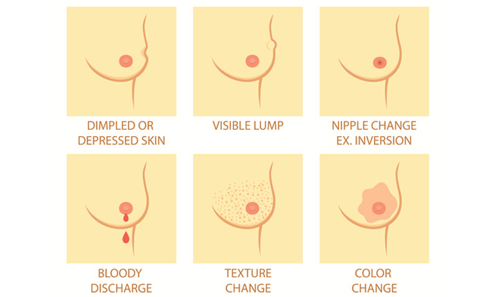Breast screening reasons