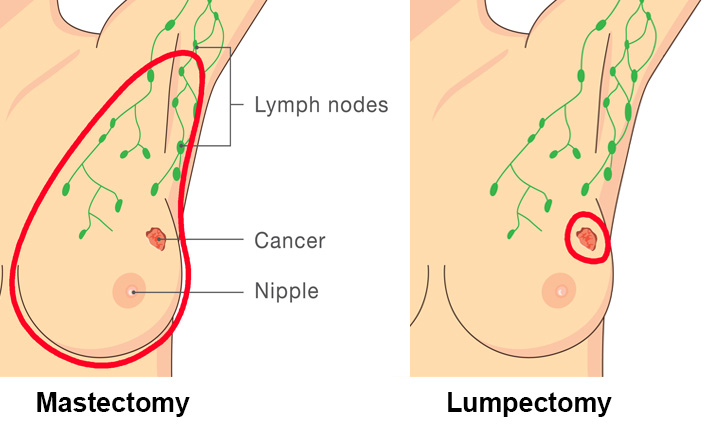 Breast cancer treatment - Oncoplastic lumpectomy