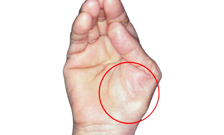 Carpal tunnel syndrome - When to seek medical attention
