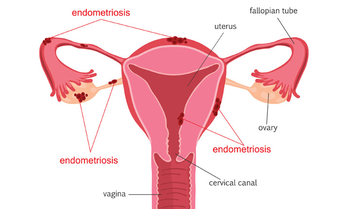 Endometriosis a growing concern