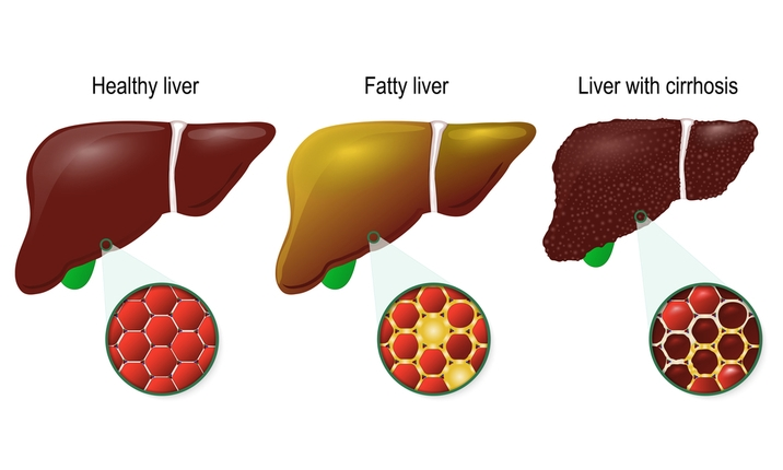 Myth fatty liver is not serious