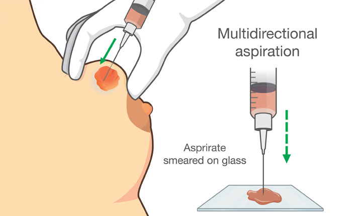 Fine-needle aspiration biopsy