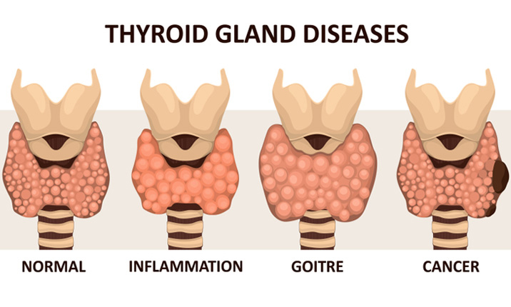 Head, neck and thyroid surgery - Thyroid conditions