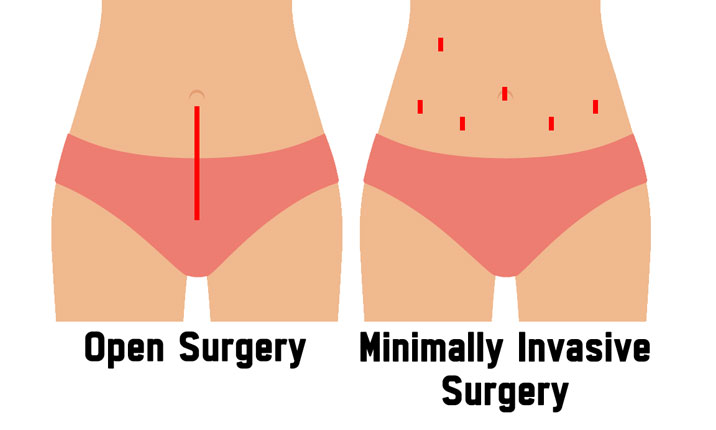 Open surgery vs MIS