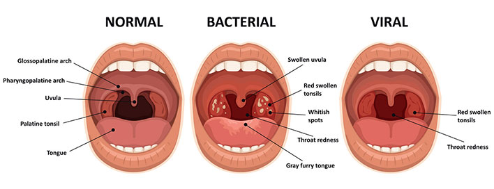 Tonsillectomy?