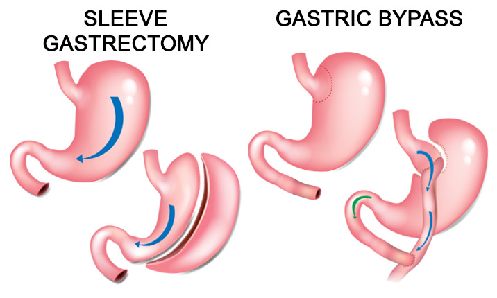 Types of metabolic surgery